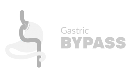 Gastric Bypass miami